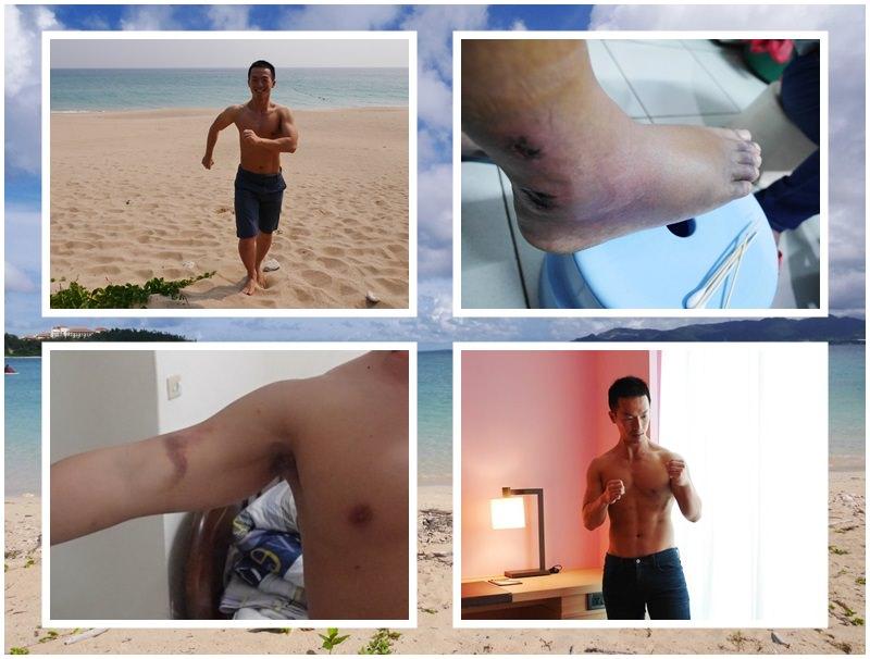 嚴重肌肉拉傷處理/車禍腳受傷休養心得分享~美食猛男阿一一2016身材紀錄